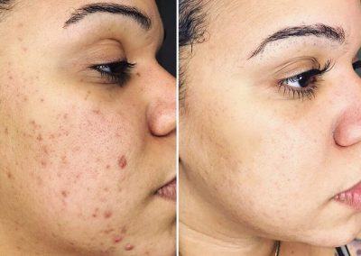 VI-peel-acne
