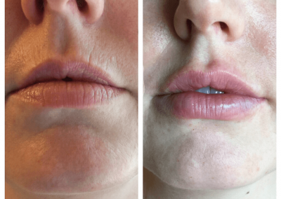 juvederm-treatment-on-lips